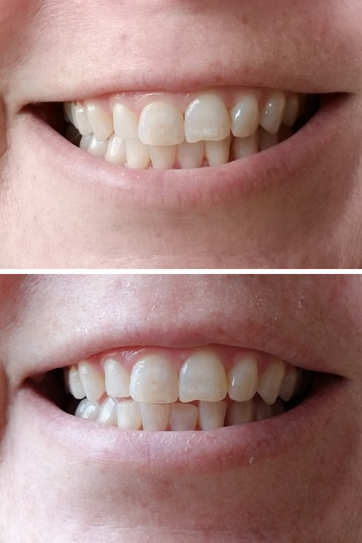 Brighten Your Holidays with Affordable At Home Teeth Whitening for Coffee Stains